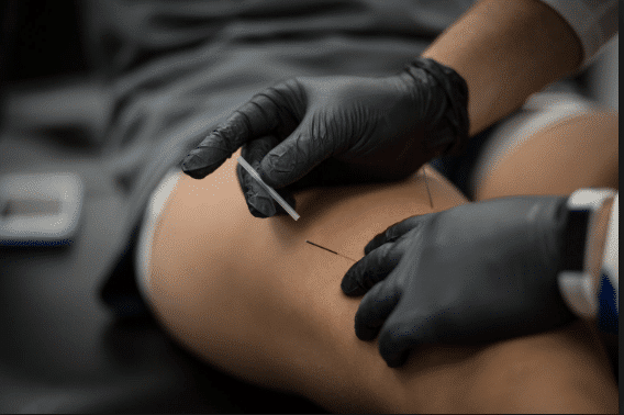 Dry needling sport sportif accupuncture puncture sèche trigger point contracture douleur